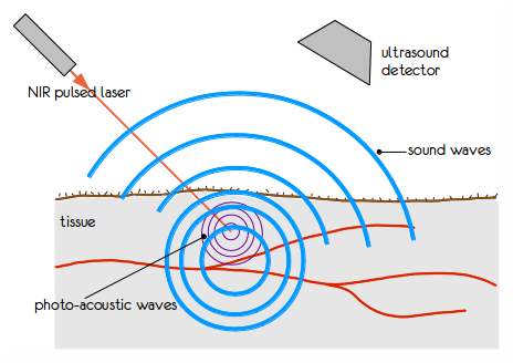 Illustration of photoacoustic tomography